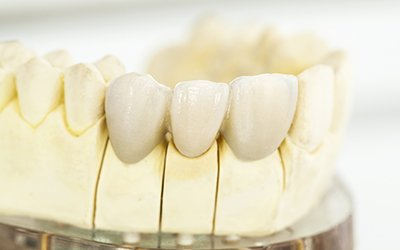 Model of dental crown treated teeth