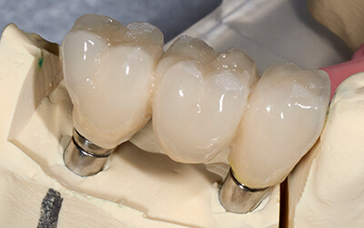 Dental crown and bridge restorations