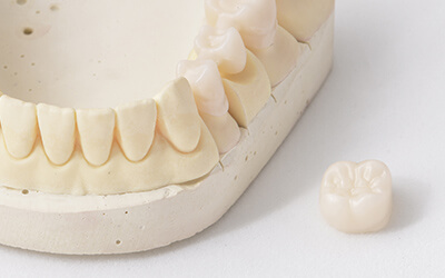Dental crown and bridge on table top
