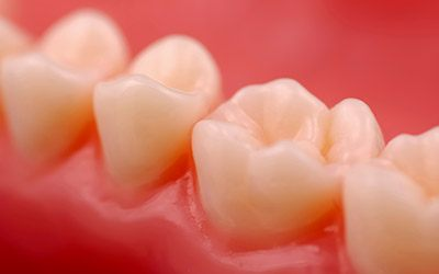 Closeup of healthy teeth following tooth-colored fillings